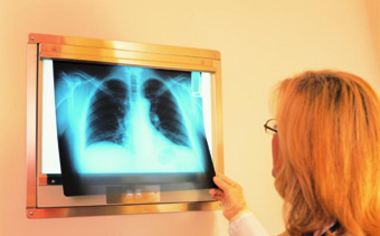AstraZeneca starts new Zactima lung cancer trial