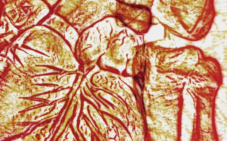 Hospital's heart transplants resume