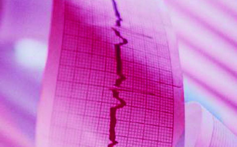 Cash boost for heart device study