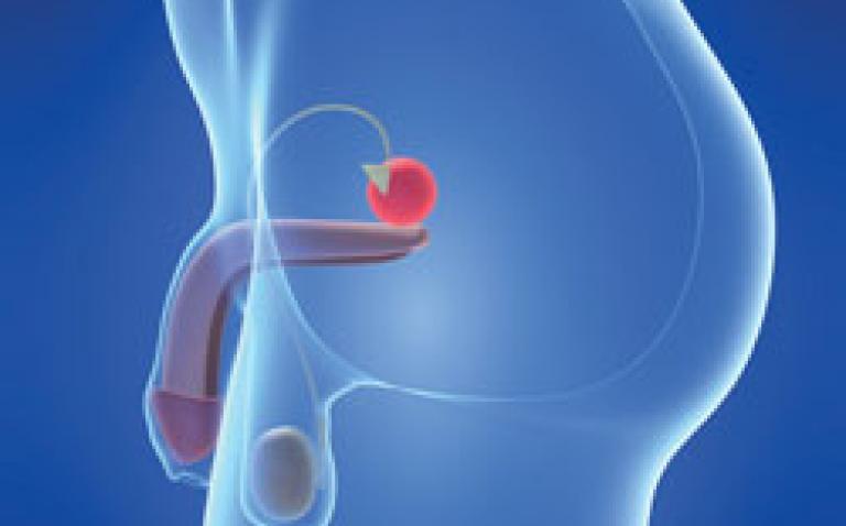 CE Mark approval for benign prostatic hyperplasia