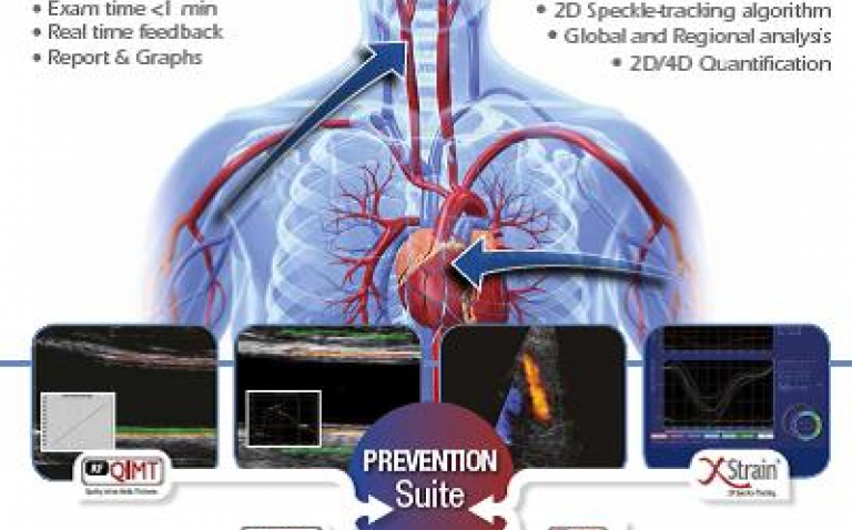 Esaote's first combined cardiac and vascular ultrasound diagnostic package