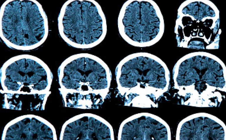 Probiodrug enrols first patient in Phase II study of treatment for Alzheimer's disease