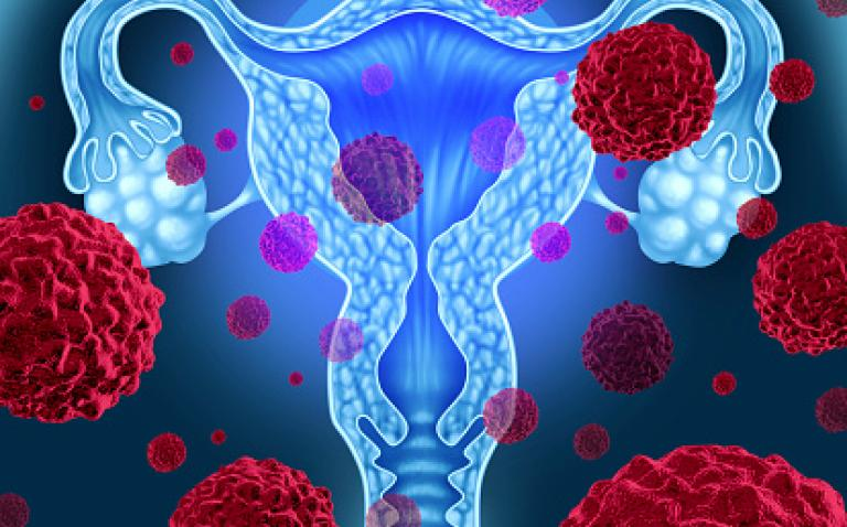 New screening technique could pick up twice as many women with ovarian cancer