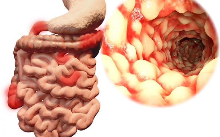 NICE recommends Stelara for moderate to severe Crohn's disease