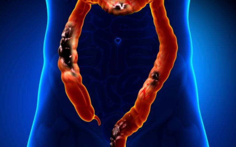 Bowel Cancer UK identifies critical research gaps