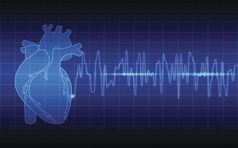 NHS rollout of innovative technology to accelerate diagnosis of atrial fibrillation