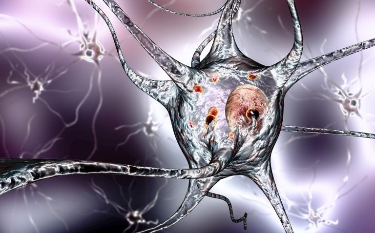 A non-invasive biological marker for Parkinson's disease?