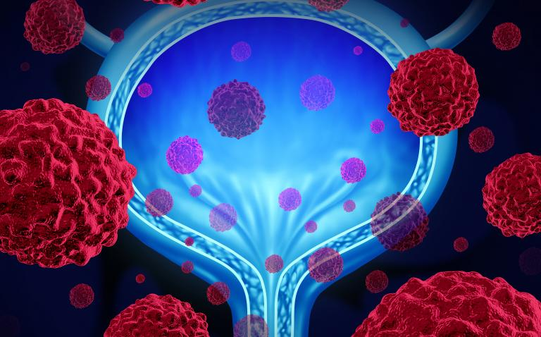 NICE approves new advanced bladder cancer immunotherapy