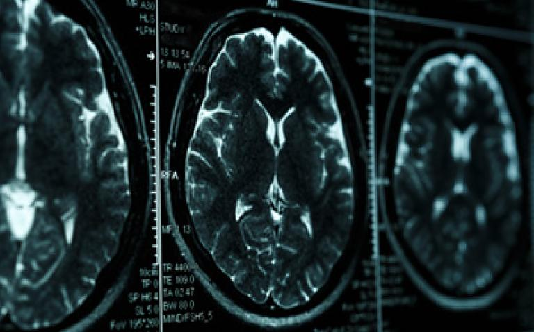 Tiny particles could help fight brain cancer