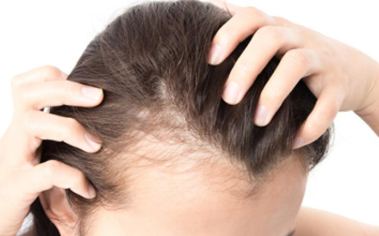 Histogen kick starts clinical trial for female hair loss