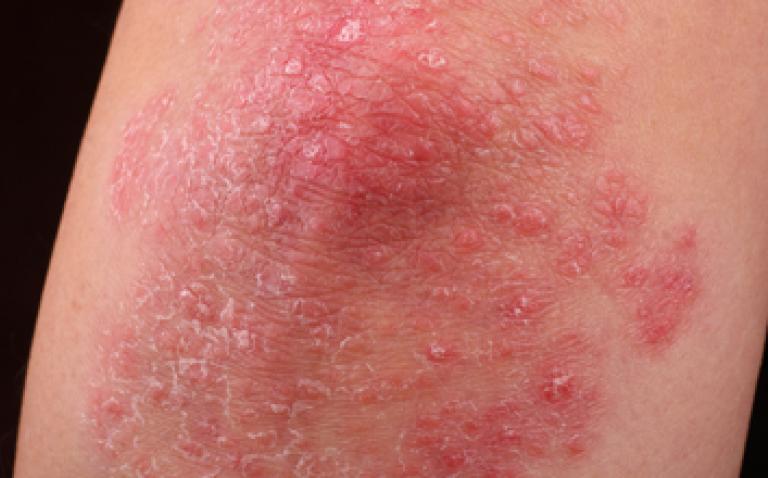 EU reapproves Cimzia to treat plaque psoriasis