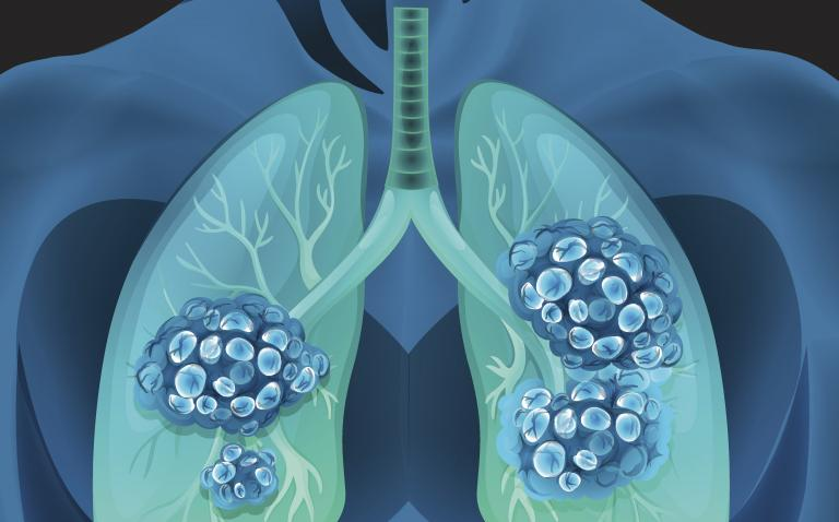 Erlotinib improves progression-free survival in early mutated non-small cell lung cancer