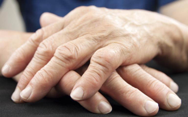 NHS on track to make £300m in savings after arthritis drug deals