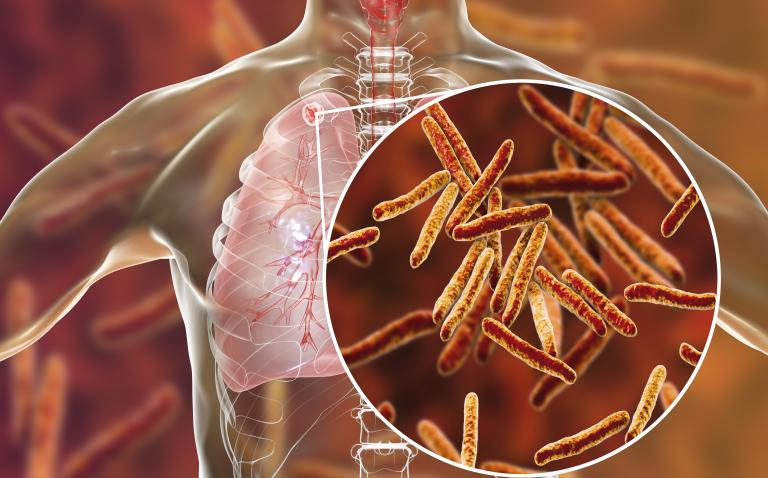 New rapid blood tests for TB could accelerate diagnosis