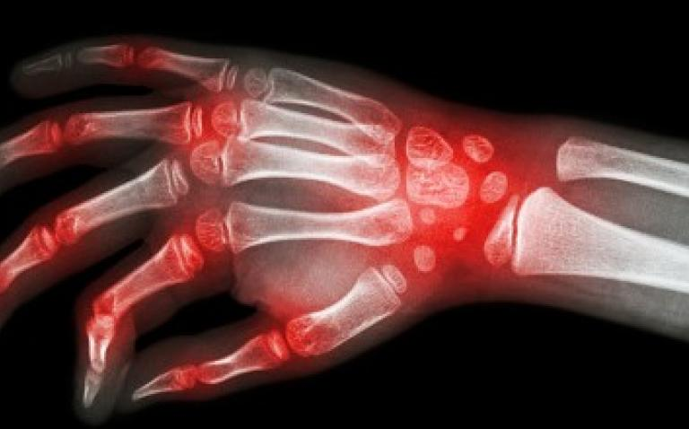 Deleting gene could help alleviate rheumatoid arthritis