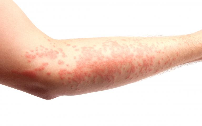 Urticaria: not always an allergic reaction