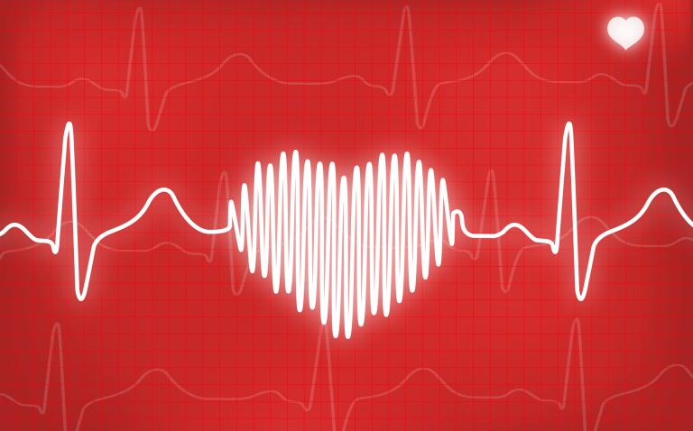 Women less likely to be resuscitated and survive a cardiac arrest than men