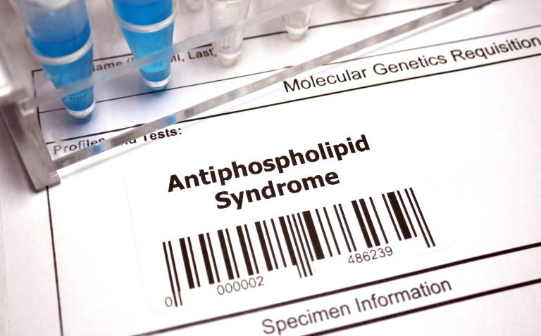 New EULAR recommendations for the management of antiphospholipid syndrome in adults