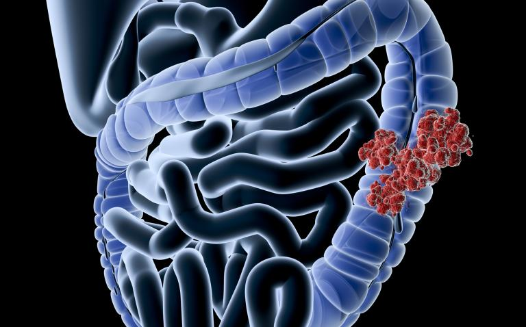 Targeted therapy combination improves survival in patients with advanced bowel cancer