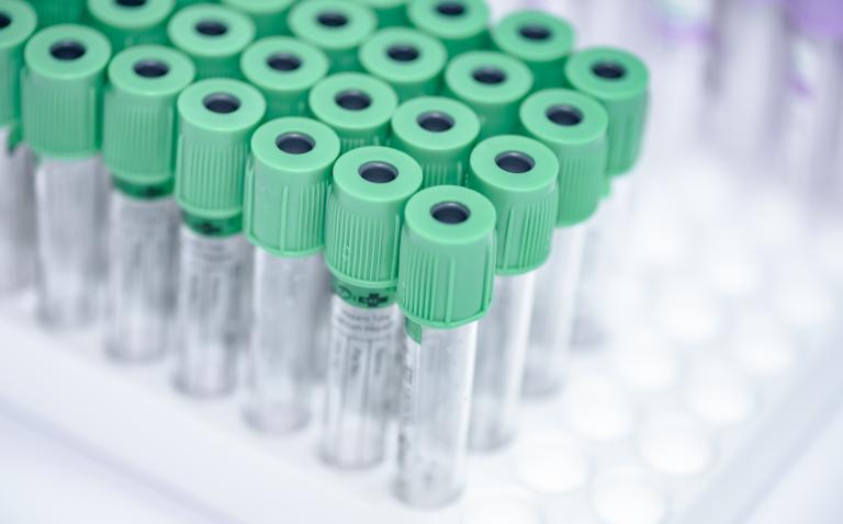 Serum biomarkers in rheumatology and autoimmunity: do we need more?