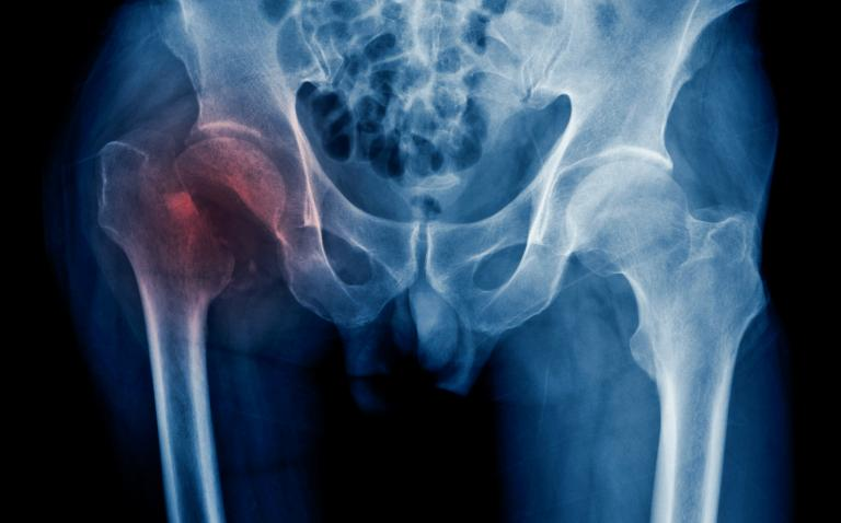 Excellence payments to hospitals improve hip fracture care