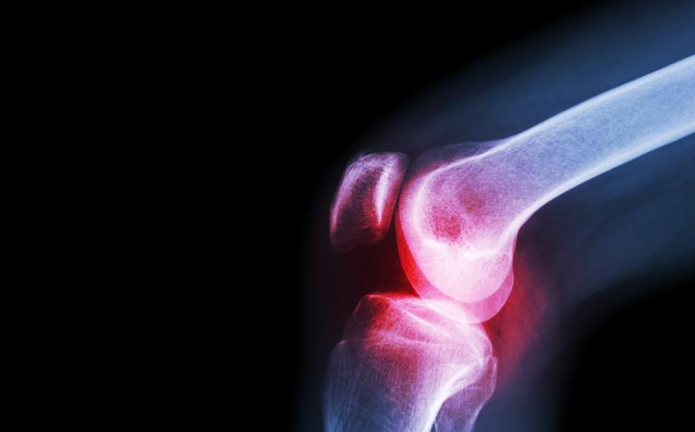 Joint lubricating fluid plays key role in osteoarthritic pain