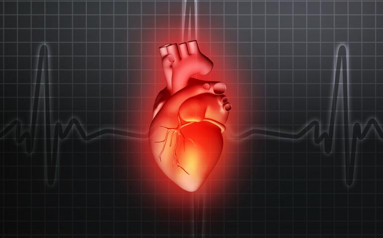 'Typical' heart attack symptoms more likely in women than men
