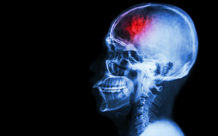 ischaemic stroke and Ticagrelor