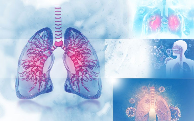 lung cancer services and COVID