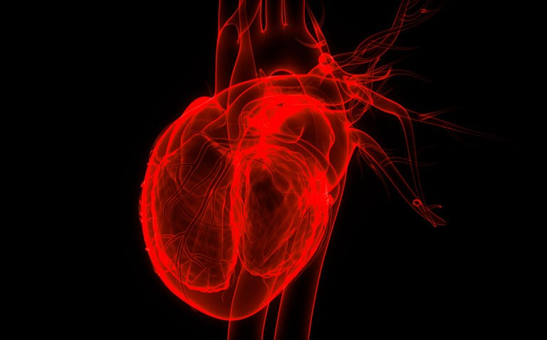 ischaemic heart disease, troponin and COVID