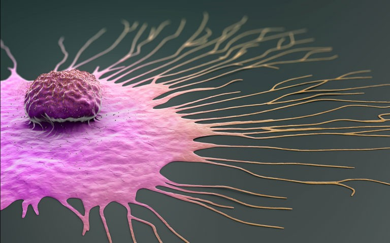 Higher BMI and risk of second breast cancer