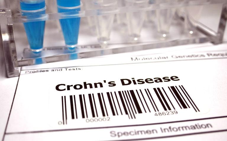 Therapeutic drug monitoring of adalimumab in paediatric Crohn's disease