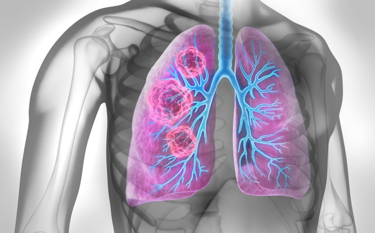 tepotinib lung cancer