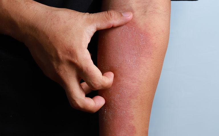 eczema adults