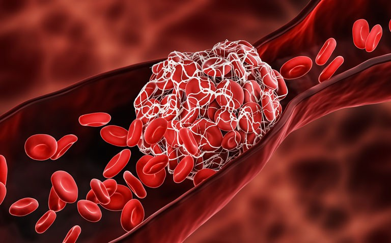 thrombosis and covid