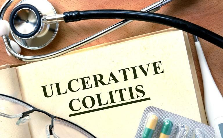 biomarkers ulcerative colitis
