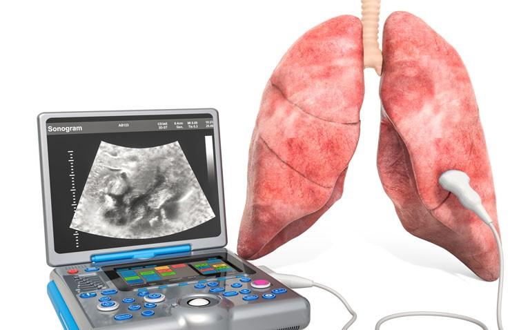 lung ultrasound