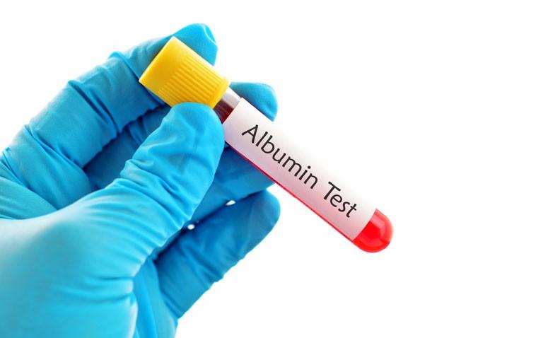 albumin levels